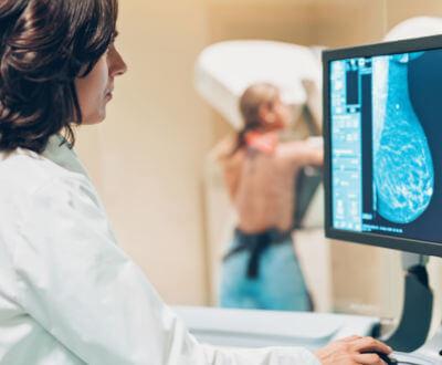 Doctora revisando radiografía de mama - Cáncer de Mamas