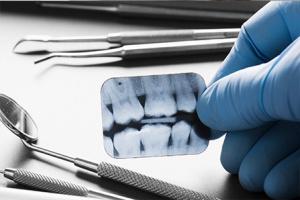 Radiografía pequeña de molares