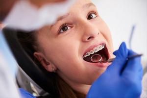 Dentista revisando dientes a niña con frenillos