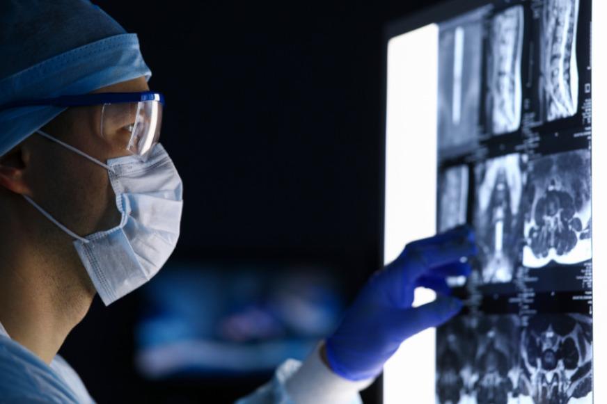 doctor viendo imágenes médicas - imagenología